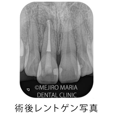 目白マリア歯科【症例】根管治療後のウォーキングブリーチによる審美的回復_治療後_術後レントゲン写真
