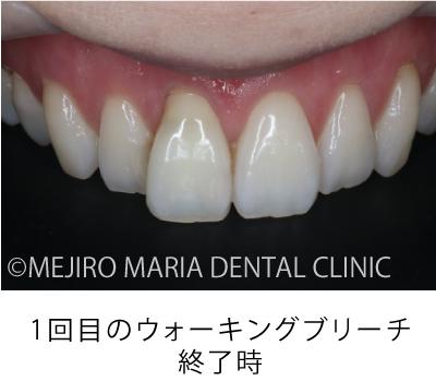 目白マリア歯科【症例】根管治療後のウォーキングブリーチによる審美的回復_治療詳細_1回目のウォーキングブリーチ終了時