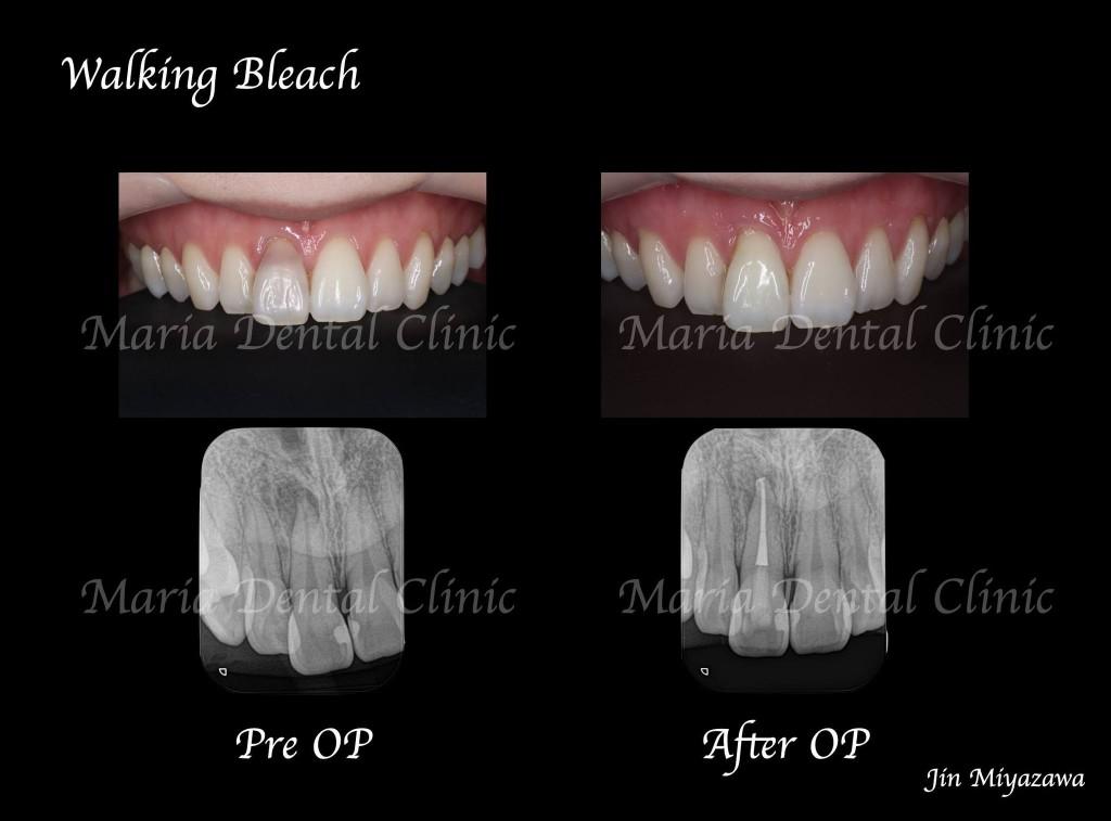 目白マリア歯科【症例】根管治療後のウォーキングブリーチによる審美的回復_Before:After