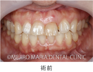 【症例】前歯の歯牙保存が不可能なケース①治療後1