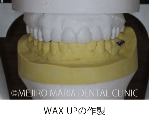 【症例】前歯の歯牙保存が不可能なケース①治療詳細1