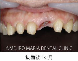 【症例】前歯の歯牙保存が不可能なケース①治療詳細3