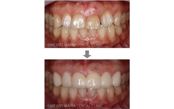 目白マリア歯科【症例】前歯の歯牙保存が不可能なケース①_メイン_治療前後の比較