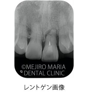 目白マリア歯科【症例】前歯の歯牙保存が不可能なケース①_治療前_レントゲン写真