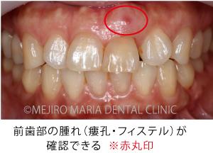 目白マリア歯科【症例】前歯の歯牙保存が不可能なケース①_治療前_前歯部の腫れが確認できる写真