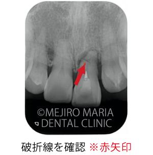 目白マリア歯科【症例】前歯の歯牙保存が不可能なケース①_治療前_破折線が確認できるレントゲン写真