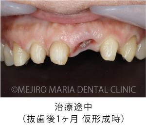 目白マリア歯科【症例】前歯の歯牙保存が不可能なケース①_治療後_治療途中