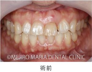 目白マリア歯科【症例】前歯の歯牙保存が不可能なケース①_治療後_術前の状態