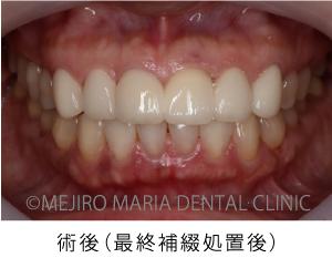 目白マリア歯科【症例】前歯の歯牙保存が不可能なケース①_治療後_術後の状態