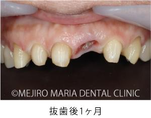 目白マリア歯科【症例】前歯の歯牙保存が不可能なケース①_治療詳細_抜歯後1ヶ月の状態