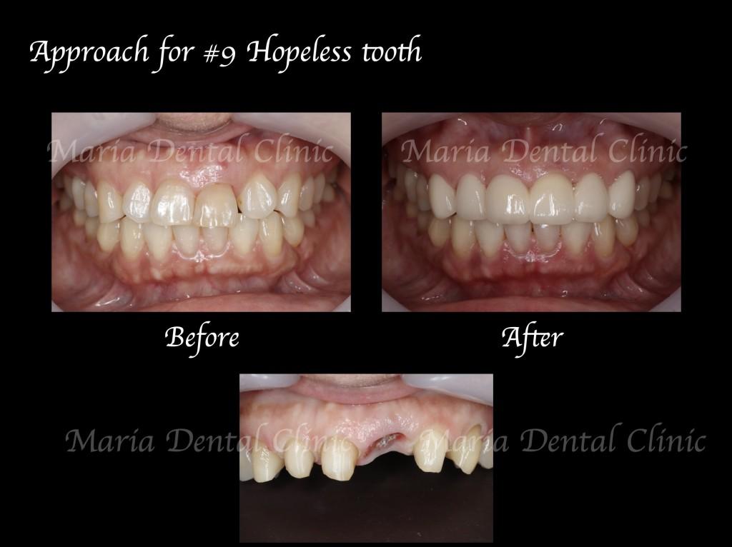 目白マリア歯科【症例】前歯の歯牙保存が不可能なケース①_Before:After