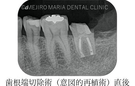 目白マリア歯科【症例】意図的再植_歯根端切除術直後のレントゲン画像