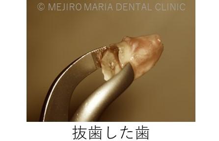 目白マリア歯科【症例】意図的再植_歯根端切除術_治療詳細抜歯した歯の画像