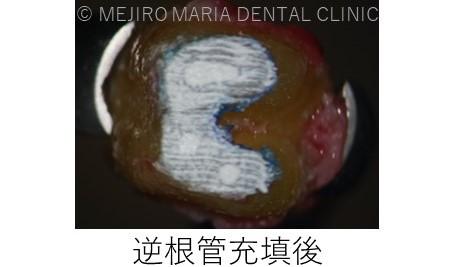 目白マリア歯科【症例】意図的再植_歯根端切除術_治療詳細_抜歯した歯の逆根管充填した画像