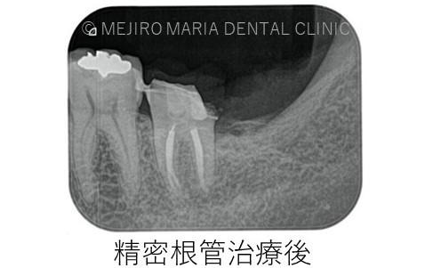 目白マリア歯科【症例】意図的再植_歯根端切除術_精密根管治療後レントゲン画像