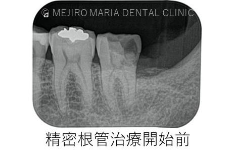 目白マリア歯科【症例】意図的再植_歯根端切除術_精密根管治療開始前レントゲン画像