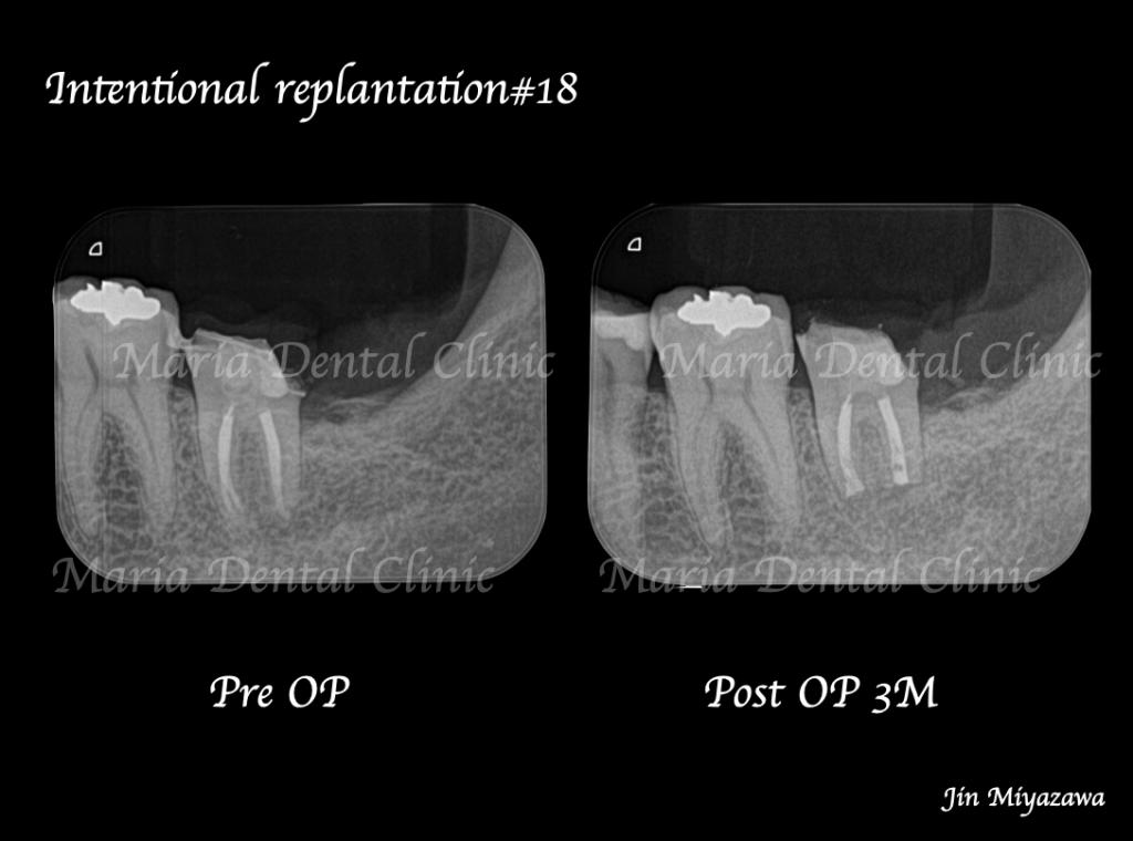 目白マリア歯科【症例】根管治療後も症状の改善が認められないケース・意図的再植・歯根端切除術レントゲン画像術前術後