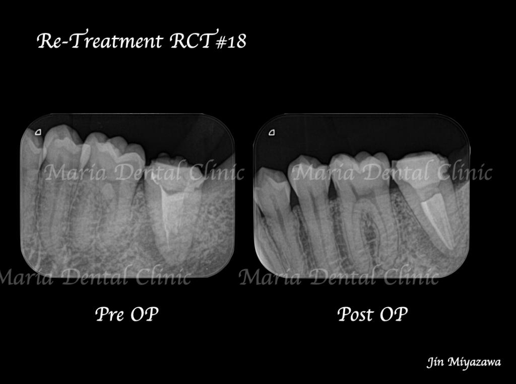 【症例】複雑な歯根形態「樋状根」(といじょうこん)に対する、精密根管治療のアプローチ(再根管治療)|歯質を守る精密な根管治療_術前術後のレントゲン画像比較