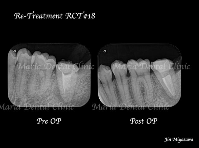 目白マリア歯科【症例】複雑な歯根形態(樋状根 (といじょうこん))に対する、精密根管治療のアプローチ(再根管治療)の治療前治療後のレントゲン画像