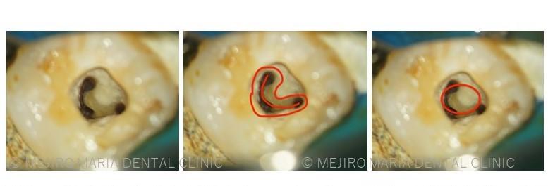 目白マリア歯科【症例】複雑な歯根形態「樋状根」(といじょうこん)に対する、精密根管治療のアプローチ(再根管治療)_「樋状根」の説明画像