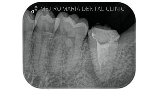 目白マリア歯科【症例】複雑な歯根形態「樋状根」(といじょうこん)に対する、精密根管治療のアプローチ(再根管治療)_治療前のレントゲン画像1