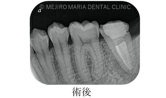 目白マリア歯科【症例】複雑な歯根形態「樋状根」(といじょうこん)に対する、精密根管治療のアプローチ(再根管治療)_治療前後比較治療後のレントゲン画像