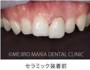 目白マリア歯科_【症例】前歯のセラミック修復による審美的な回復(前歯部1歯補綴)_セラミク装着前の口腔内写真