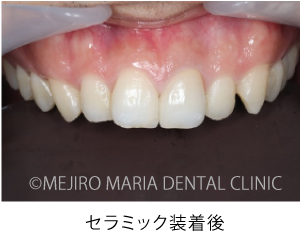 目白マリア歯科_【症例】前歯のセラミック修復による審美的な回復(前歯部1歯補綴)_セラミク装着後の口腔内写真