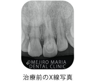 目白マリア歯科_【症例】前歯のセラミック修復による審美的な回復(前歯部1歯補綴)_初診時のX線写真