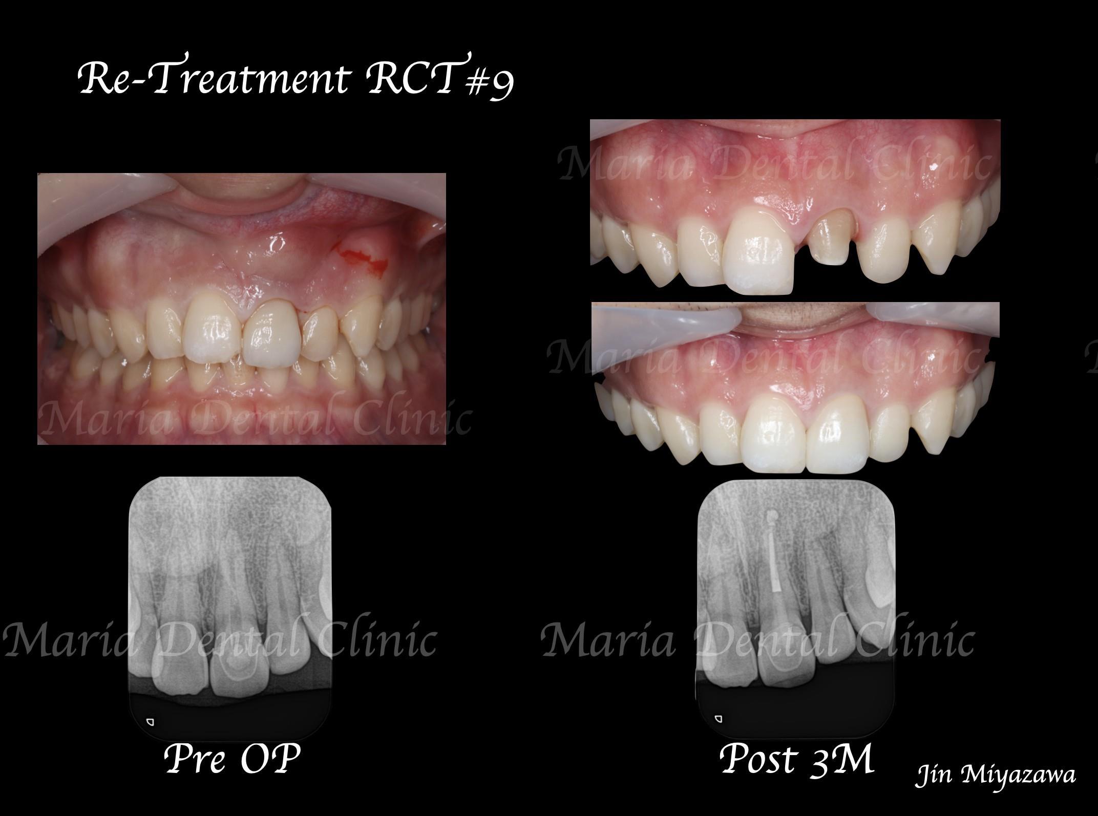 目白マリア歯科_【症例】前歯のセラミック修復による審美的な回復(前歯部1歯補綴)_口腔内及X線の比較写真