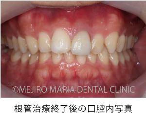 目白マリア歯科_【症例】前歯のセラミック修復による審美的な回復(前歯部1歯補綴)_根管治療終了後の口腔内写真