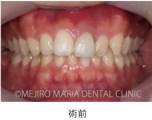 目白マリア歯科_【症例】前歯のセラミック修復による審美的な回復(前歯部1歯補綴)_術前の口腔内写真