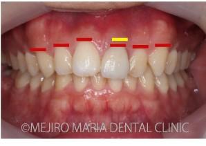 目白マリア歯科_【症例】前歯のセラミック修復による審美的な回復(前歯部1歯補綴)_(※)歯肉ラインの口腔内写真-2