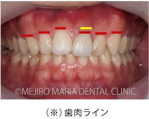 目白マリア歯科_【症例】前歯のセラミック修復による審美的な回復(前歯部1歯補綴)_(※)歯肉ラインの口腔内写真