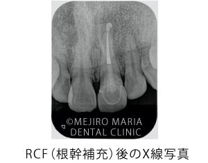 目白マリア歯科_【症例】前歯のセラミック修復による審美的な回復(前歯部1歯補綴)_RCF(根幹補充)後のX線写真