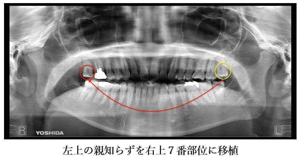 目白マリア歯科 親知らずの移植でインプラントを回避した症例_パノラマX線画像左上親知らずを右上7番部位に移植