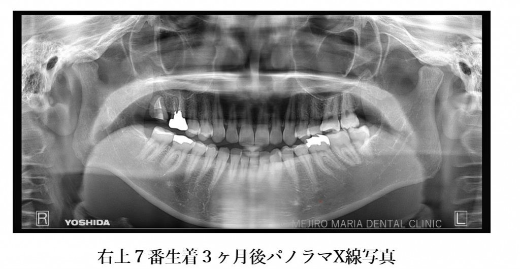 目白マリア歯科 親知らずの移植でインプラントを回避した症例_根生着後3ヶ月パノラマX線画像