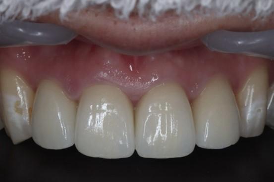目白マリア歯科|【症例】自然な美しさを考慮した審美歯科治療|最終補綴物装着後2週間後