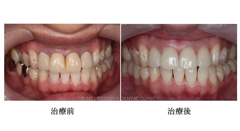 目白マリア歯科|【症例】自然な美しさを考慮した審美歯科治療|治療前と治療後の口腔内写真