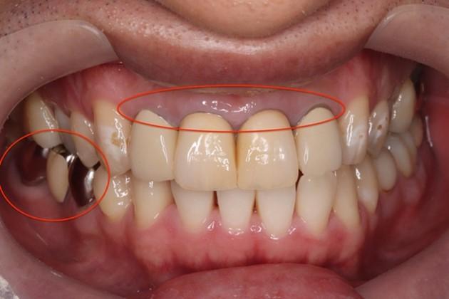 目白マリア歯科|【症例】自然な美しさを考慮した審美歯科治療|治療前の口腔内写真