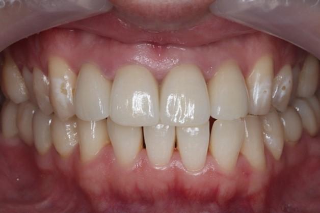目白マリア歯科|【症例】自然な美しさを考慮した審美歯科治療|治療後の口腔内写真