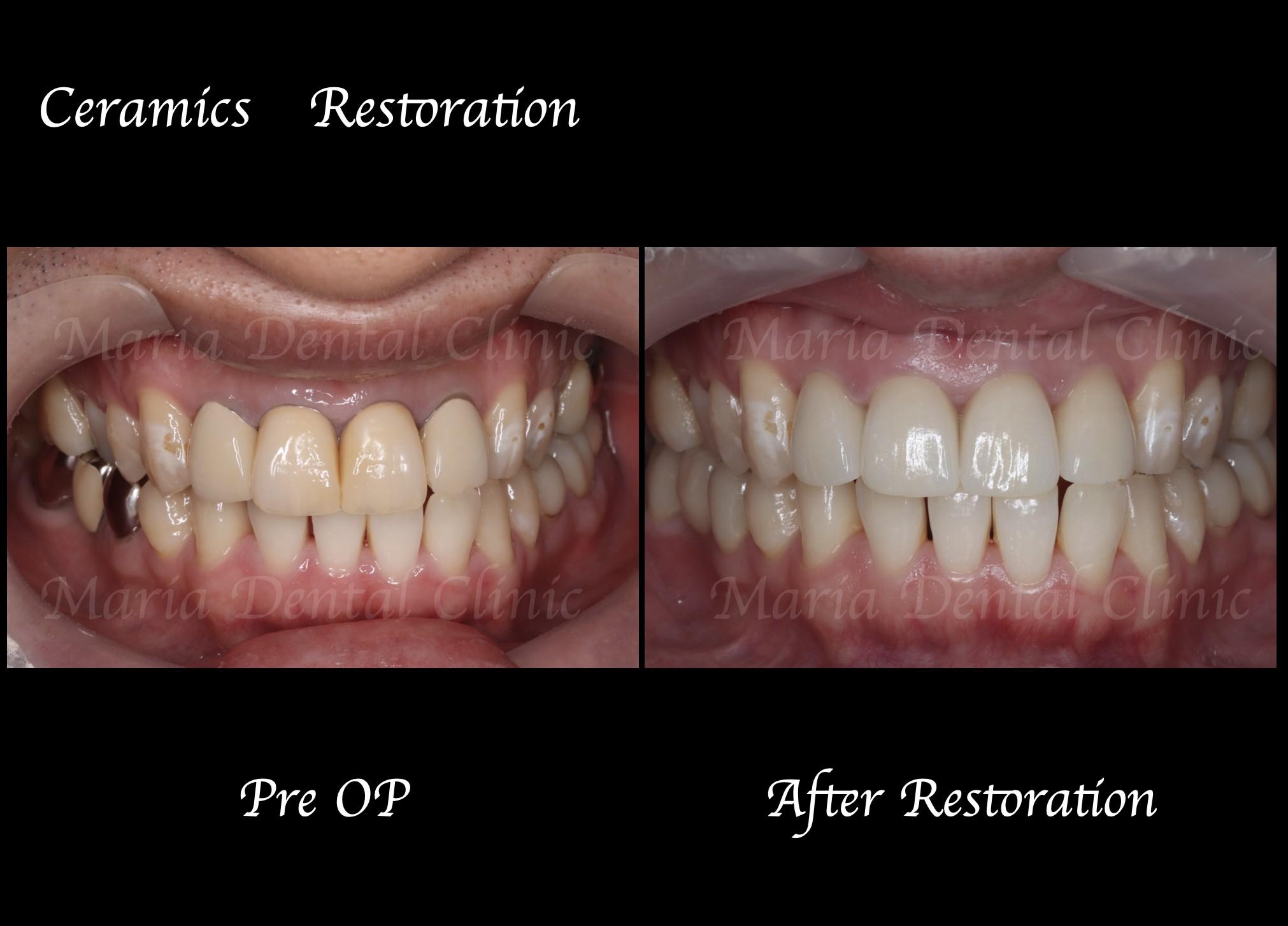 目白マリア歯科|【症例】自然な美しさを考慮した審美歯科治療 beforeafter