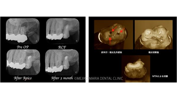 目白マリア歯科|【症例】歯根端切除術(意図的再植術)により、病変の大きい根尖性歯周炎の抜歯を回避|メイン画像_レントゲンと歯の写真2-2