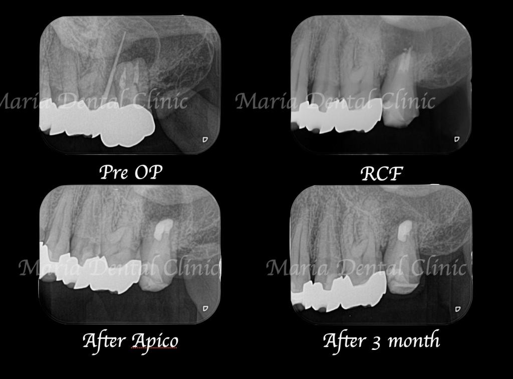 目白マリア歯科|【症例】歯根端切除術(意図的再植術)により、病変の大きい根尖性歯周炎の抜歯を回避|レントゲンの比較画像