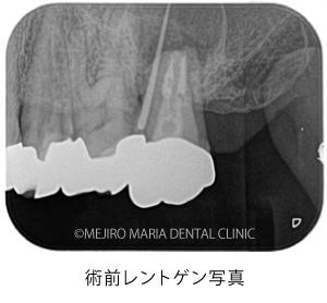 目白マリア歯科|【症例】歯根端切除術(意図的再植術)により、病変の大きい根尖性歯周炎の抜歯を回避|治療前_術前レントゲン写真