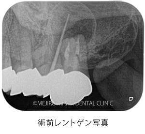 目白マリア歯科|【症例】歯根端切除術(意図的再植術)により、病変の大きい根尖性歯周炎の抜歯を回避|治療前_術前レントゲン写真2