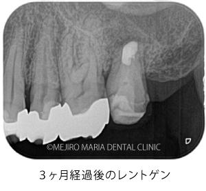 目白マリア歯科|【症例】歯根端切除術(意図的再植術)により、病変の大きい根尖性歯周炎の抜歯を回避|治療後_歯根端切除術(意図的再移植術)3ヶ月経過後のレントゲン