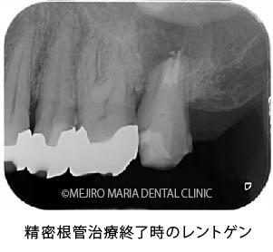 目白マリア歯科|【症例】歯根端切除術(意図的再植術)により、病変の大きい根尖性歯周炎の抜歯を回避|治療詳細_精密根管治療終了時のレントゲン画像