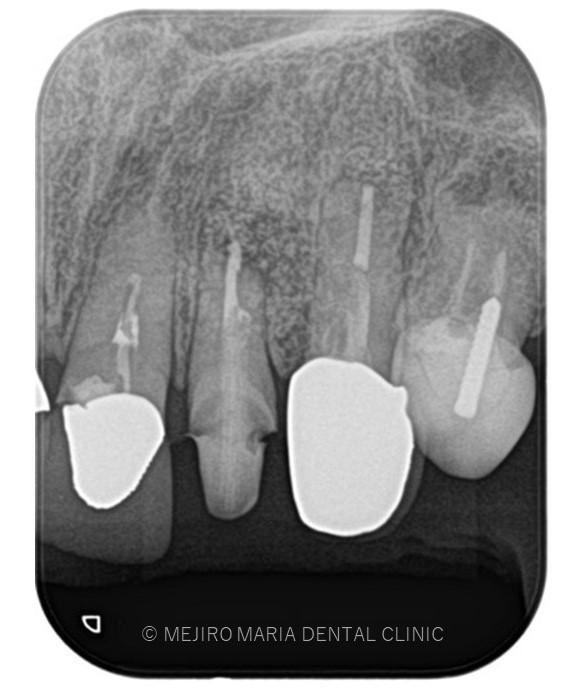 目白マリア歯科【症例】根尖部に充填された人工骨の感染により根尖性歯周炎が難治化。歯内療法(精密根管治療)でのリカバリー_該当歯牙の精密根管治療後のレントゲン画像