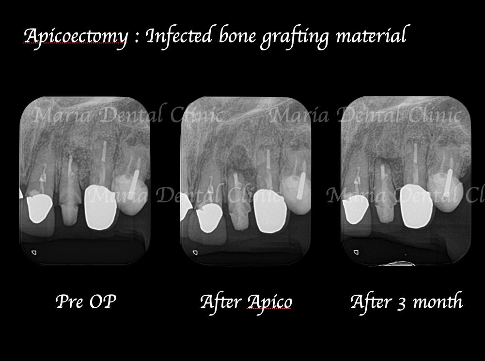 目白マリア歯科【症例】根尖部に充填された人工骨の感染により根尖性歯周炎が難治化。歯内療法(精密根管治療)でのリカバリー治療前治療後の画像